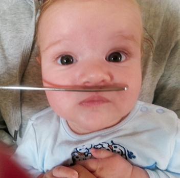 začepljen nos bebe - test metalne špatule