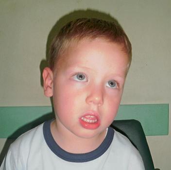facies adenoidea - simptom upale krajnika kod djeteta - Littledot